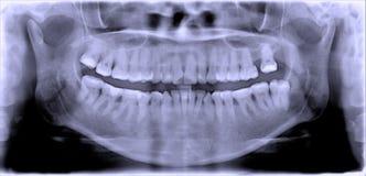 牙齿影片 免版税图库摄影