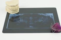 牙齿放射学、下颌洞和整体构成的假肢 免版税库存图片