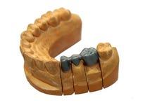 牙齿桥梁和冠 免版税库存图片