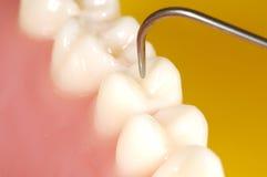 牙齿检查 免版税库存图片