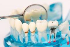牙齿模型或牙模型与镜子 库存照片