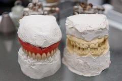 牙齿模型 免版税库存图片