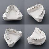 牙齿模子膏药 库存照片