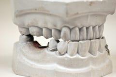 牙齿模子 免版税库存照片