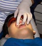 牙齿治疗的男孩 大括号装箱的 胳膊关心健康查出滞后 库存图片