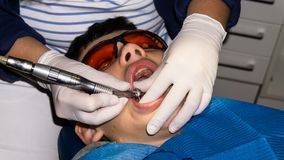 牙齿治疗的自我中心男孩 大括号装箱的 胳膊关心健康查出滞后 免版税库存图片