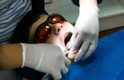 牙齿治疗的自我中心男孩 大括号装箱的 胳膊关心健康查出滞后 库存图片