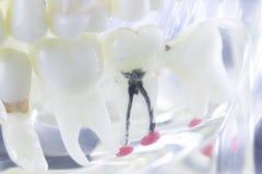 牙齿牙根运河 库存图片