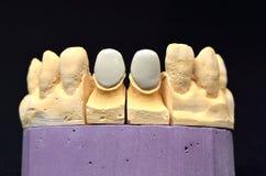 牙齿牙植入管 免版税库存图片