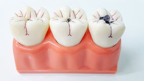 牙齿牙模型和牙齿工具 免版税图库摄影