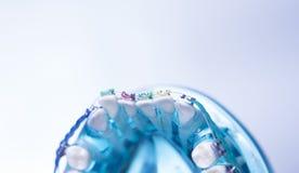 牙齿牙金属托架 免版税库存图片
