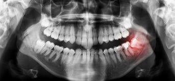 牙齿牙X射线辐射与被歪曲的智齿的全景扫描 免版税库存图片