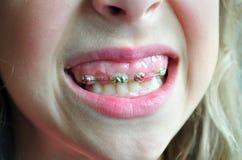 牙齿的大括号 库存图片