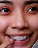 牙齿的大括号 免版税库存照片