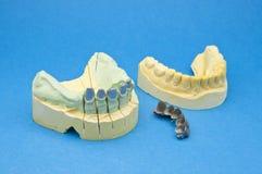 牙齿的桥梁 免版税图库摄影