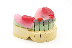 牙齿的桥梁 免版税库存照片