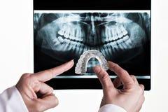 牙齿的解决方法 免版税库存图片