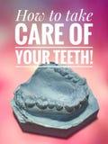 牙齿石膏模型 免版税图库摄影
