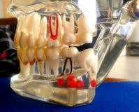 牙齿研究模型 库存图片
