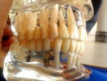 牙齿研究模型 库存照片
