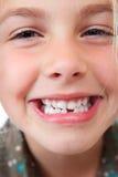 牙齿空白 免版税库存图片