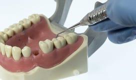 牙齿装填 库存照片