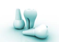 牙齿要素植入管查出的视图白色 免版税库存照片