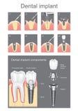 牙齿要素植入管查出的视图白色 库存照片