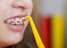 牙齿访问 免版税库存照片