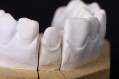 牙齿详细资料设计蜡 库存照片