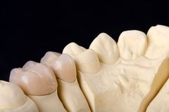 牙齿详细资料设计蜡 免版税库存照片