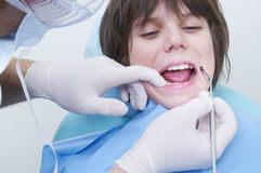 牙齿 库存照片