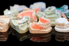 牙齿partials 库存图片
