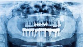 牙齿X-射线全景上部和下颌 赞成牙插入物 免版税库存图片