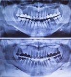 牙齿X-射线全景人 库存图片