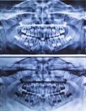 牙齿X-射线全景孩子 免版税库存图片