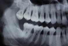牙齿X-射线左一半 免版税库存图片