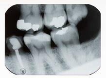 牙齿X-射线 免版税库存照片