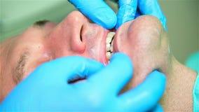 牙医减少下颌 股票视频