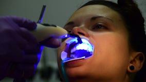 牙医在耐心妇女的牙上把托架放; 检查与牙齿镜子和比定象与激光 影视素材