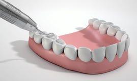 牙医探针勾子和牙 免版税库存图片