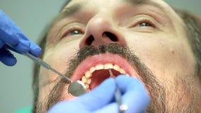 牙医的手有工具的 股票视频