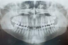 牙X-射线  库存照片