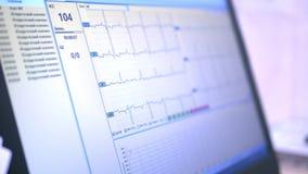 特写镜头在膝上型计算机屏幕上的心电图图表 冲程的数量在正规值上的 股票视频