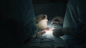 特写镜头外科医生手做手术给有特别仪器的患者,慢动作 影视素材
