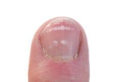 特写镜头指甲盖leukonychia 库存图片