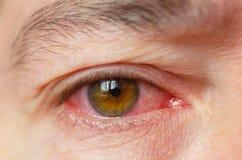 特写镜头激怒了被传染的红色眼充血,结膜炎 免版税图库摄影