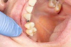 特写镜头牙插入物一个牙齿诊所的麦芽酒患者在治疗期间 外科审美牙科的概念 库存照片