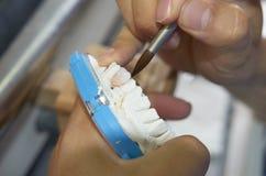 特写镜头牙科技师投入陶瓷对牙插入物 免版税库存照片