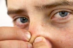 特写镜头看照相机的画象年轻人,紧压粉刺或鸥在鼻子 作为背景的特写镜头卫生学的 库存照片